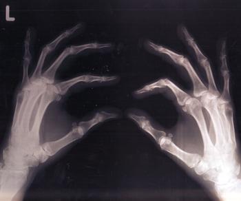 object #3: bones