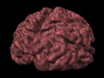 alzheimer's  brain image